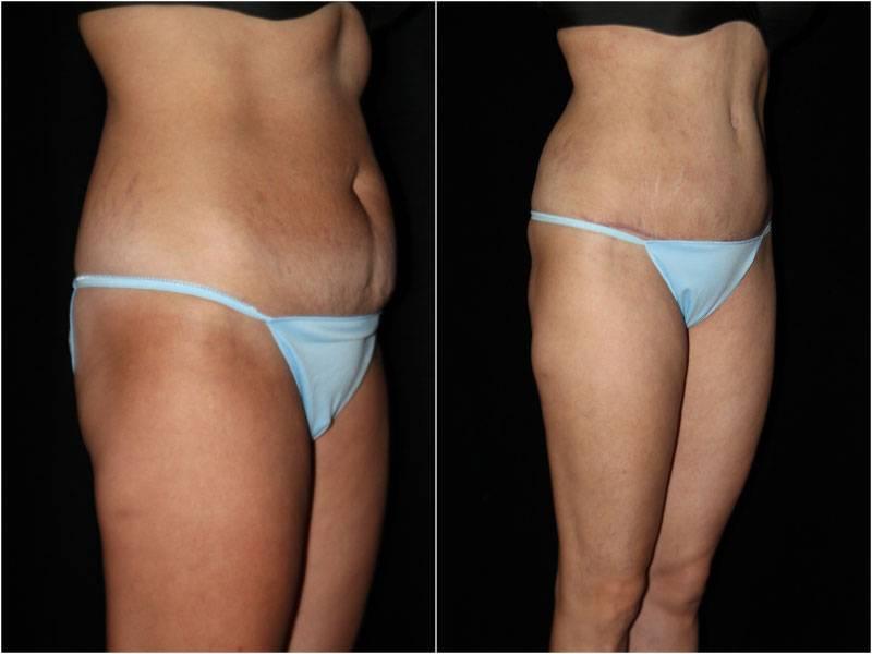 003_abdominoplasty-liposuction1-2-2