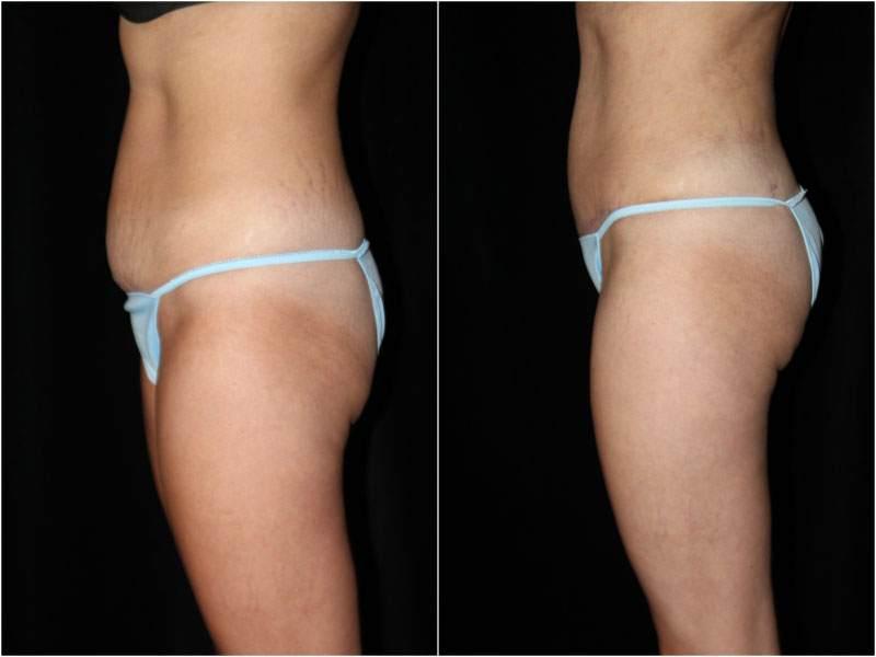 004_abdominoplasty-liposuction1-4-2