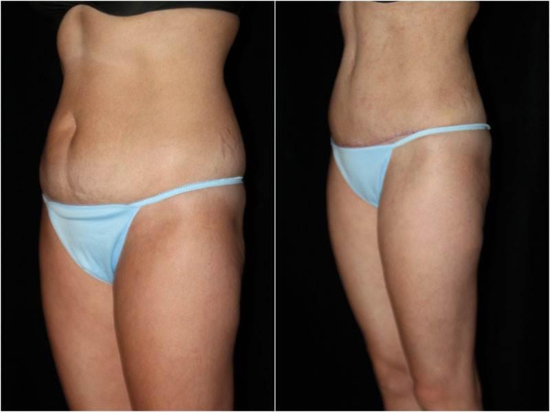 005_abdominoplasty-liposuction1-6