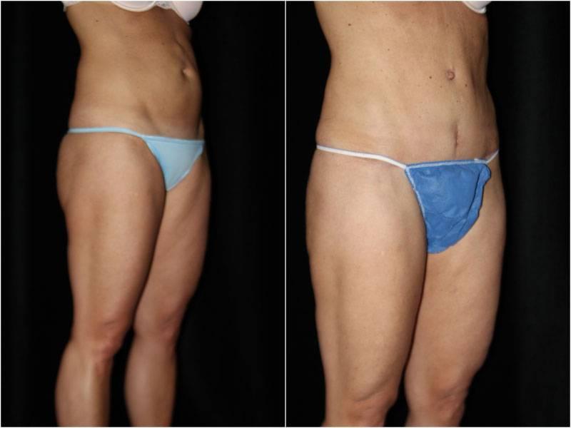 007_abdominoplasty1-2