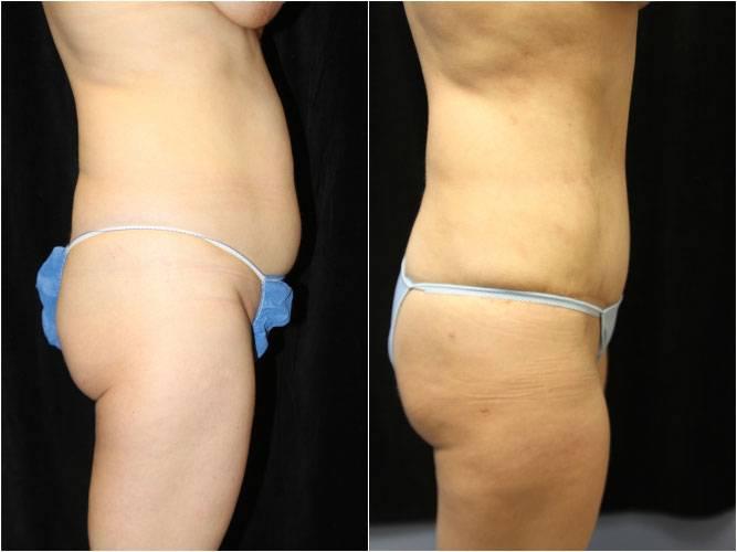 038_abdominoplasty1-1a