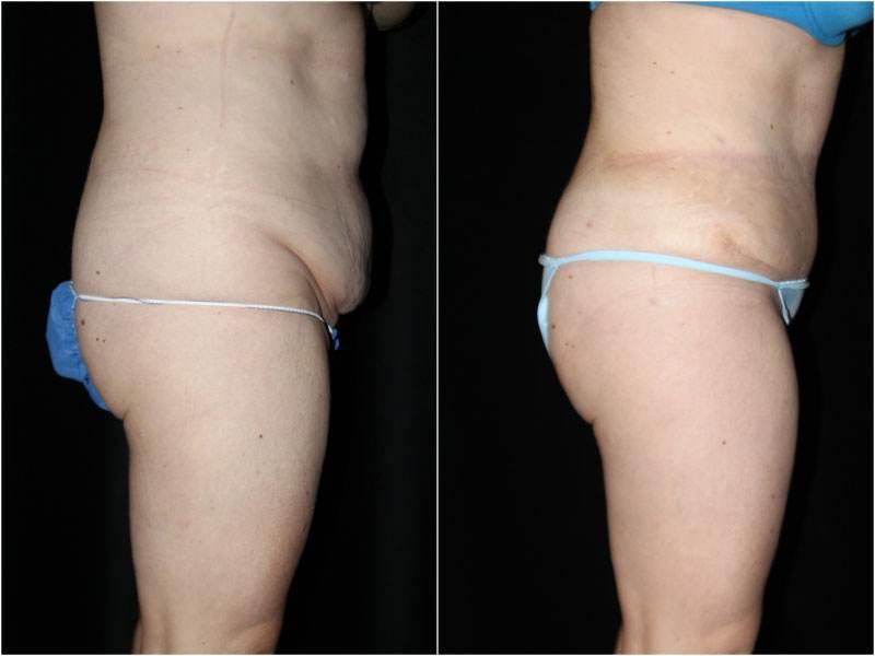 041_abdominoplasty-liposuction1-1