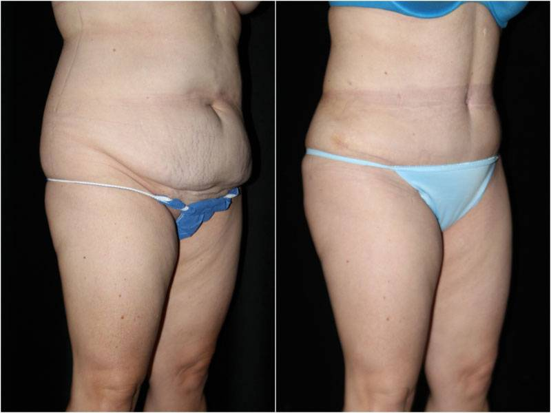 042_abdominoplasty-liposuction1-2