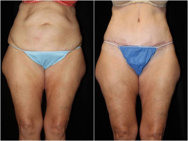 046_abdominoplasty-liposuction1-1-1