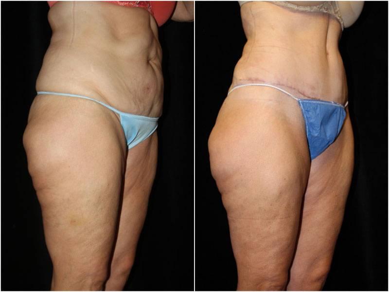 047_abdominoplasty-liposuction1-2-1