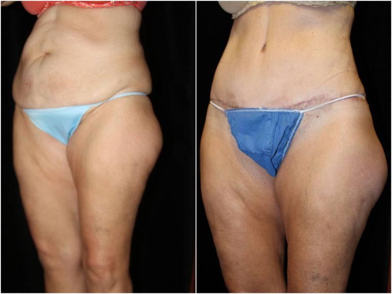 048_abdominoplasty-liposuction1-3-1