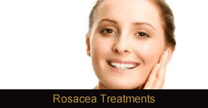 Rosacea Treatment (IPL) Novi & Troy Michigan