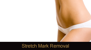 Laser Stretch Mark Removal Novi & Troy Michigan