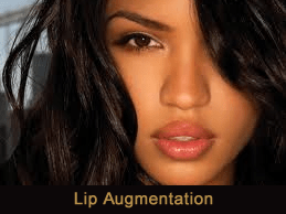 Lip injections Novi & Troy, Michigan