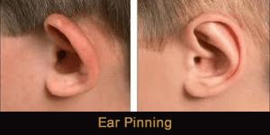 Otoplasty Ear Pinning Novi Troy Michigan